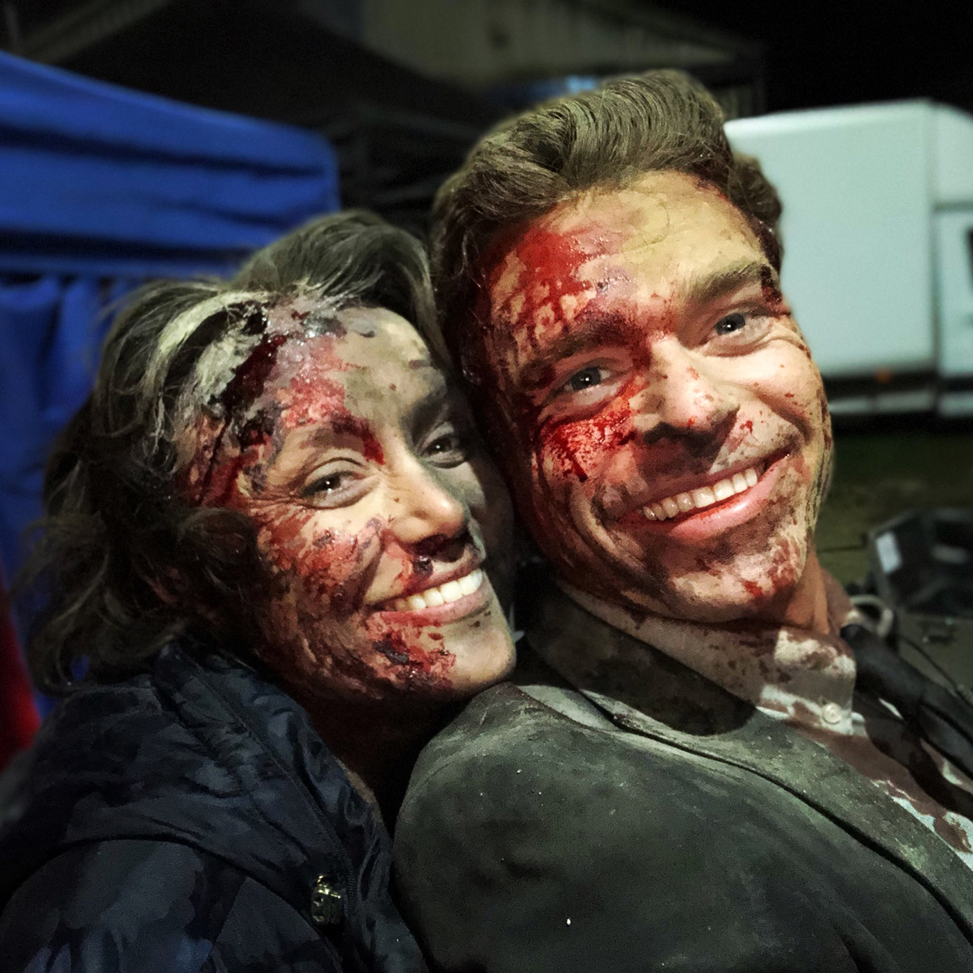 Richard Madden and Keeley Hawes bloody faces